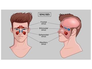 Endoscopic surgery for treating sinusitis
