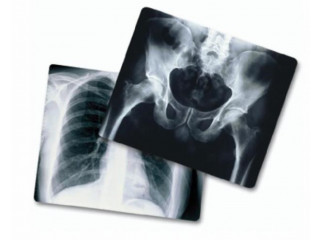 Buyer of used medical xray film
