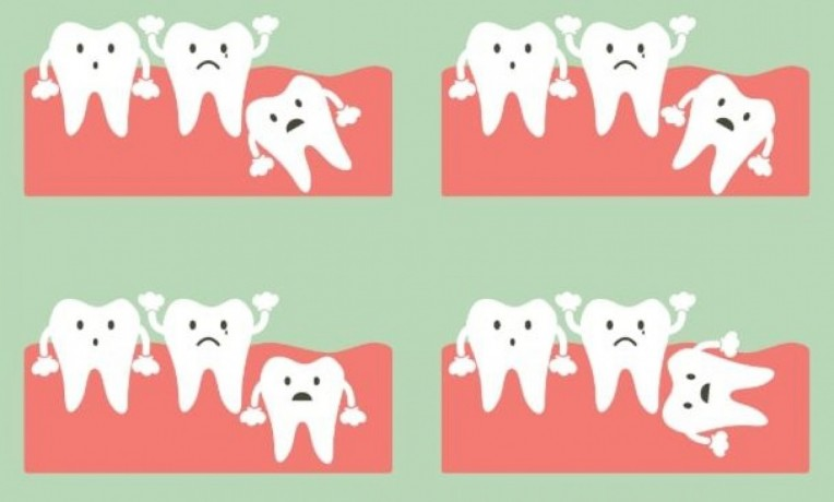 do-you-need-an-impacted-wisdom-teeth-removal-treatment-big-0