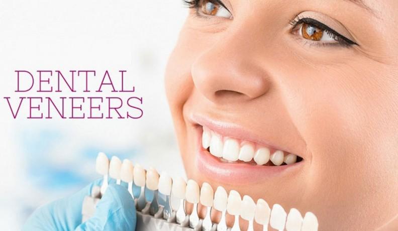 veneers-dental-implants-big-0