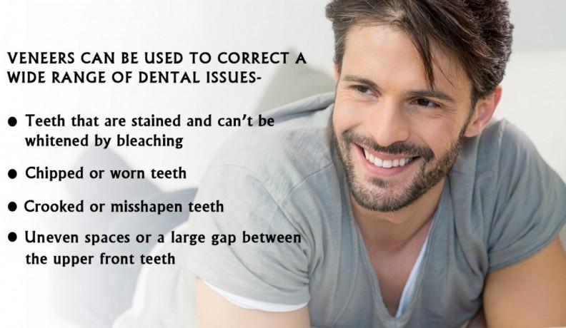 veneers-dental-big-0