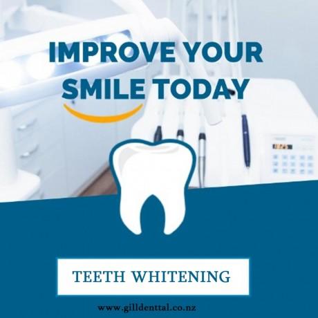 teeth-whitening-big-0