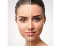 acne-treatments-small-1
