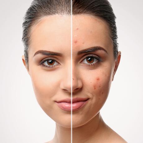 acne-treatments-big-1