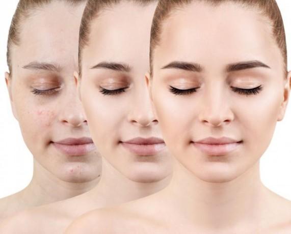 acne-treatments-big-0