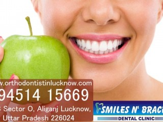 Implant in Lucknow | Orthodontist in Lucknow | Dentist in Aliganj