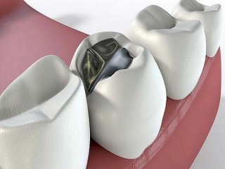 Save Your Tooth From the Risks of Cavity with Timely Filling