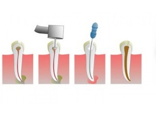 Prevent damages from tooth decay and infection with root canal