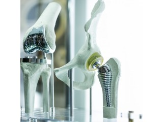 Trauma Implants and Instruments Supplier