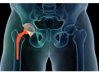 Looking For Hip Replacement Surgery In Kolkata? Contact Dr. Manoj Kumar Khemani