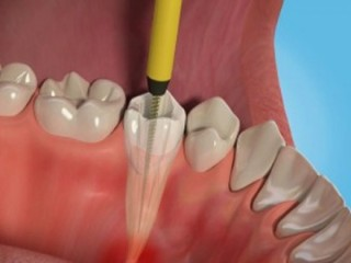 Retain Your Oral Health by Opting for Pain-free Root Canal Treatment in Delhi
