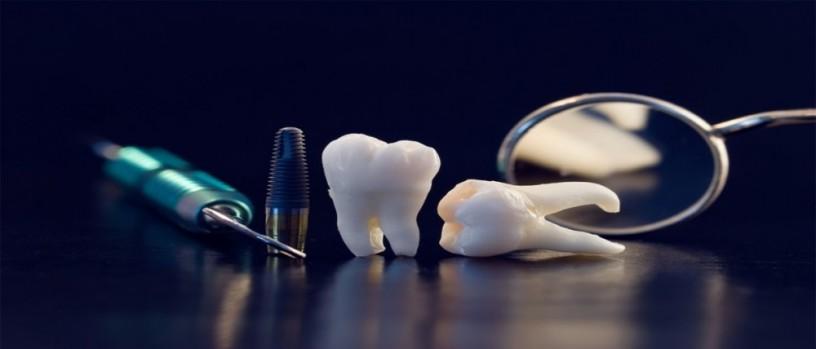 best-dentist-in-dammam-and-khobar-big-0
