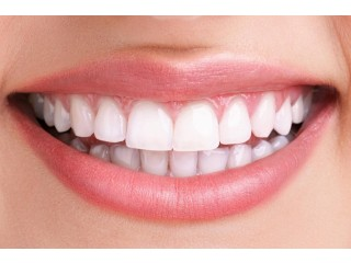 Smile Makeover Dental Clinic in Kerala