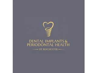 DENTAL IMPLANTS & PERIODONTAL HEALTH